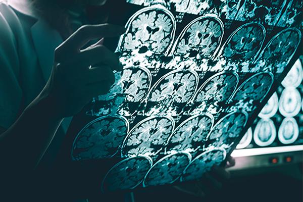 ¿Sabemos realmente el significado del Alzheimer?