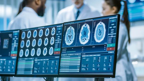 Según un estudio publicado en el European Journal of Neurology