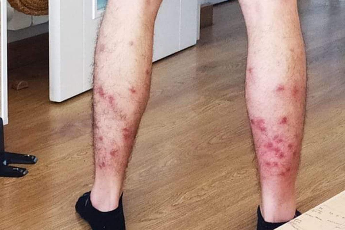 Estaba jugando al pádel cuando fue acribillado por los mosquitos y tuvo que acudir a urgencias
